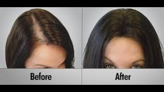 Women Hide Their Hair Loss Instantly and Permanently 559-568-HAIR Fresno California