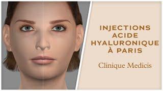 Médecine esthétique à Paris : Dr ABBOU et Dr PESSIS explication du vieillissement du visage