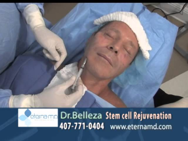 Male WAL fat injection to the face at Dr. Mercado
