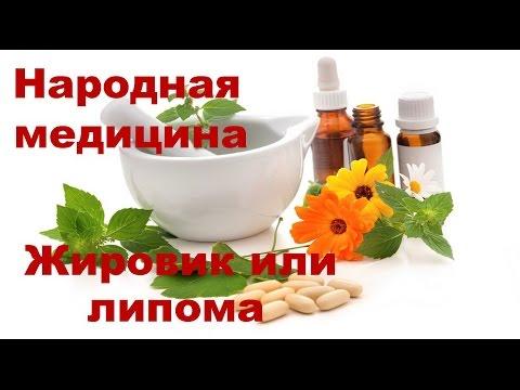 Лечение жировиков народными средствами: домашние рецепты