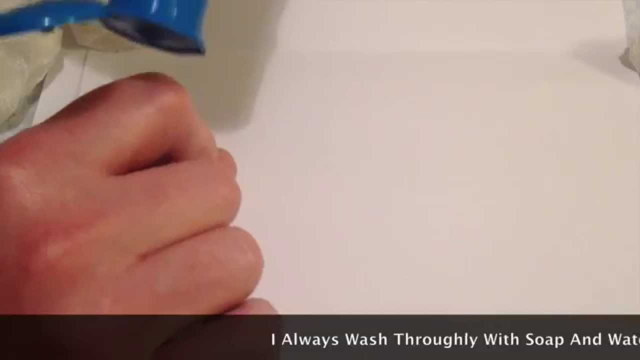 How I Aspirate My Painful Ganglion Cysts To Regain Hand Function