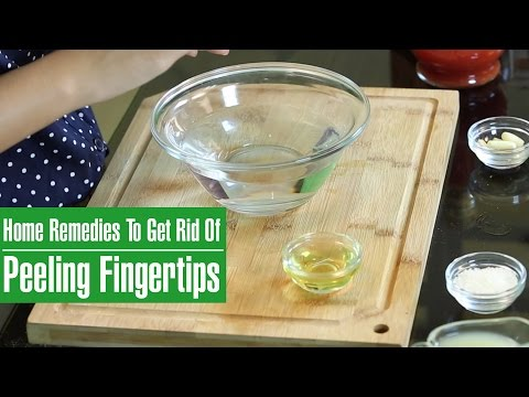 How To Get Rid Of PEELING SKIN ON FINGERTIPS (Dead Skins On Hand)