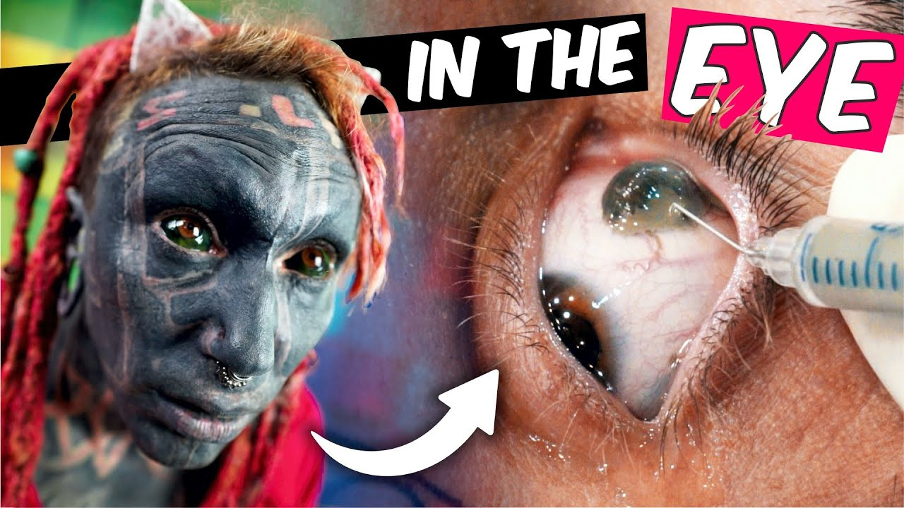 Eyeball Tattoo All About Eye Scleral Tattooing Close Up Youtube Usually, it entails the injection of a special type of ink under the white of the eye. eyeball tattoo all about eye scleral tattooing close up