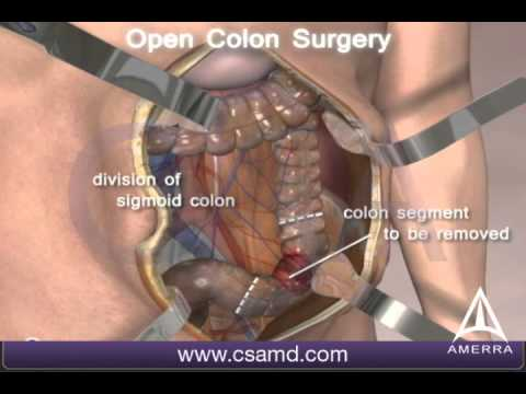 Am o tumora de colon. Pot fi operat laparoscopic? | primariacetateni.ro