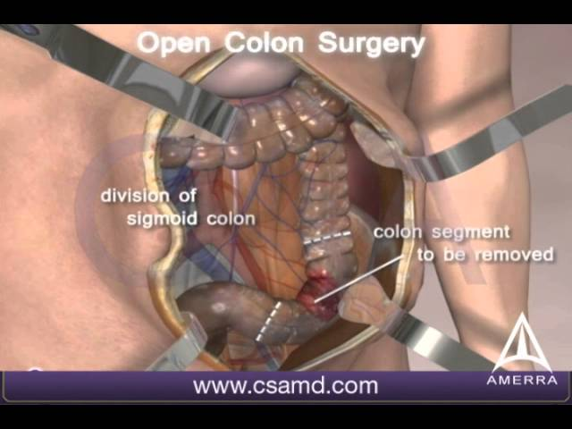 Colorectal Cancer Surgery 3d Medical Animation Open Procedure Youtube
