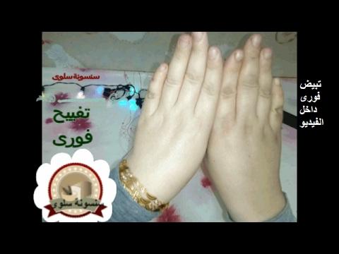 a853ef1eb2586  تبييض اليدين فورا داخل الفيديو واحكمى بنفسك تفييح اليدين الركب المفاصل -  YouTube