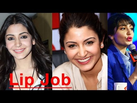 Anushka Sharma has done LIP JOB??