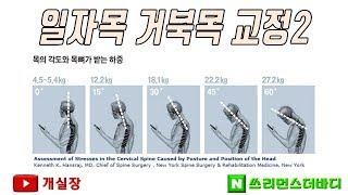 울산) 일자목 거북목 교정2