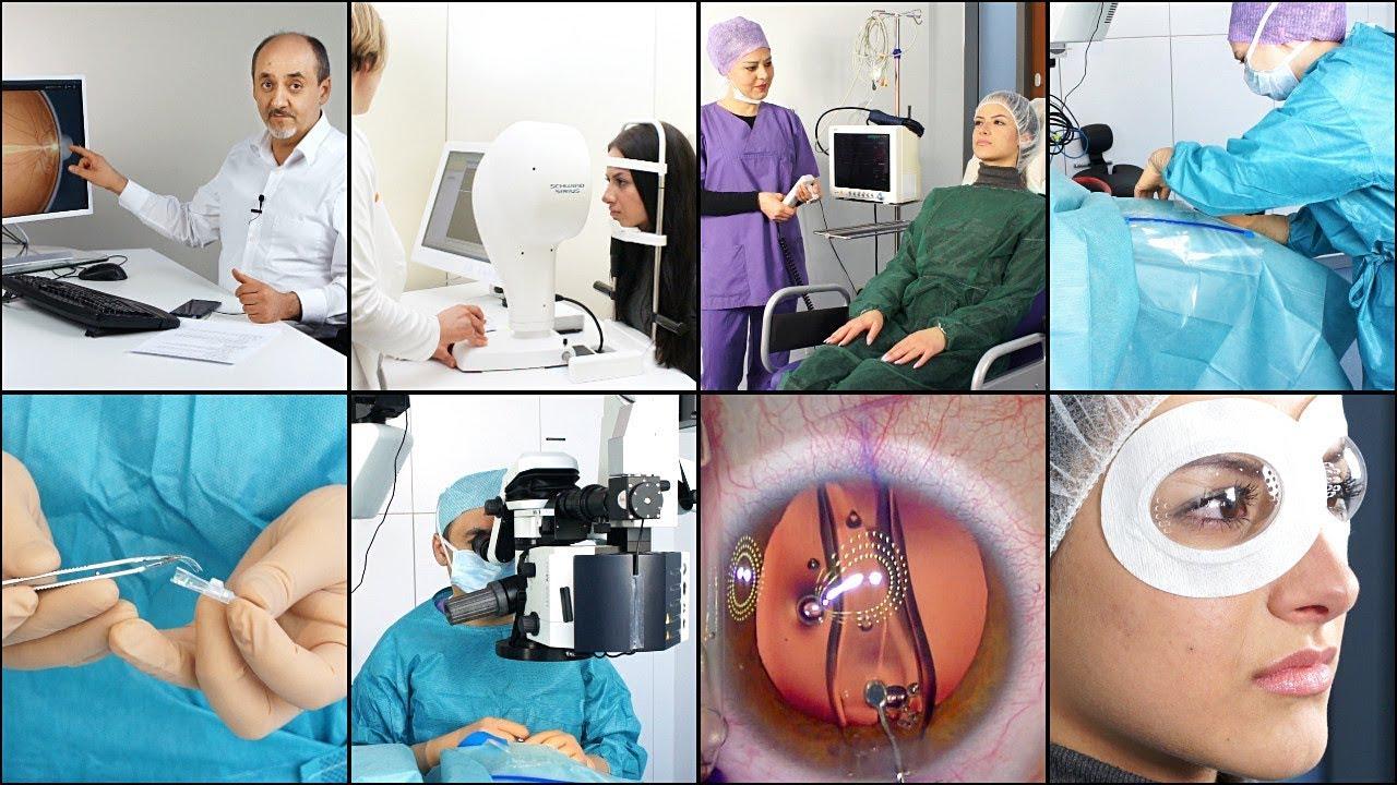 Dauerhafte Korrektur der Kurzsichtigkeit mit EVO Visian ICL Linse