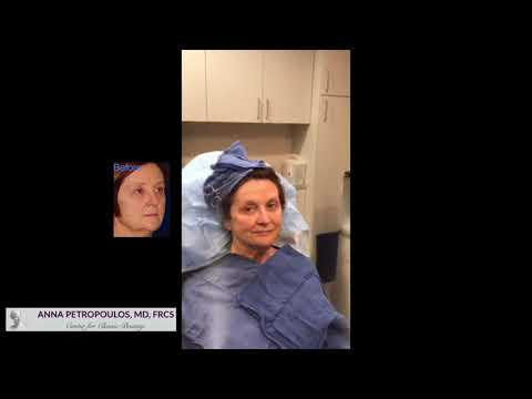 Silhouette Instalift Real Patient Results with Dr. Anna Petropoulos
