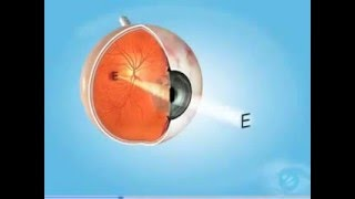 Cataracts Condition