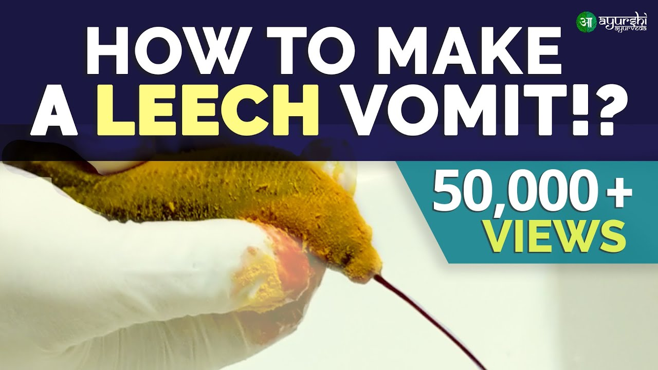 leech medical tratament varicoză)