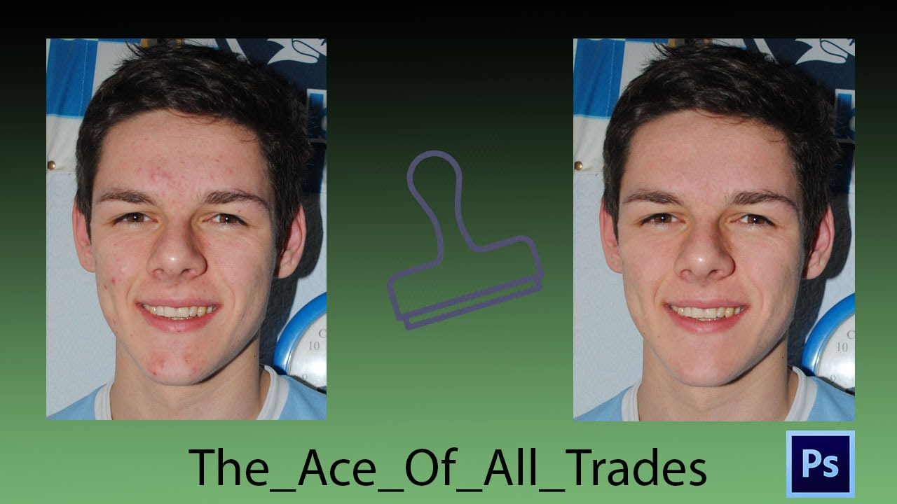 how to fix acne on photoshop