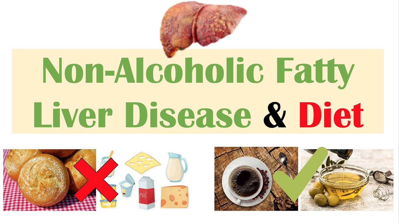 Download Non-Alcoholic Fatty Liver Disease & Diet | Diets to Prevent and Reduce Severity of NAFLD