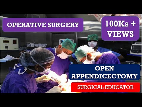 OPEN APPENDECTOMY