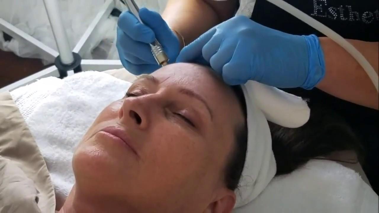 Magnetic-dermabrasion Facial