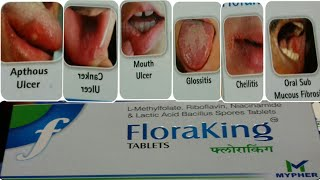 Floraking Tablet | Best All Mouth Ulcer Treatment | Use Full Hindi Review