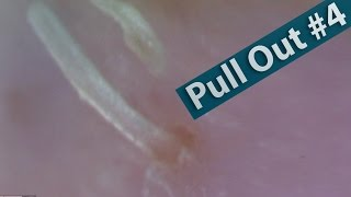 【No.04】ピンセットで角栓を抜く(pull out the keratin plug)[Whitehead/Blackhead]