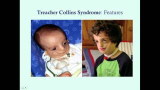 Liam's Story Chronicling Treacher Collins Syndrome.
