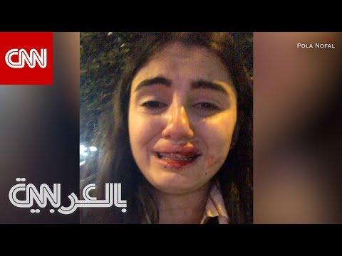 بعد -الاعتداء عليها-.. اللبنانية بولا نوفل توضح لـCNN ما حصل  - نشر قبل 7 ساعة