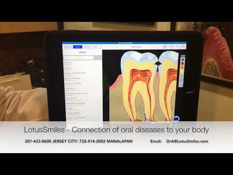 LotusSmiles - Connection of oral diseases to your body