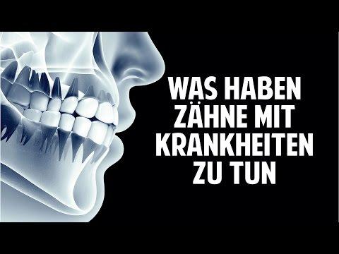 Krankheiten & Schmerzen - Was haben Deine Zähne damit zu tun?