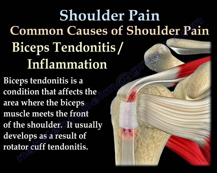Shoulder Pain Everything You Need To Know Dr Nabil Ebraheim