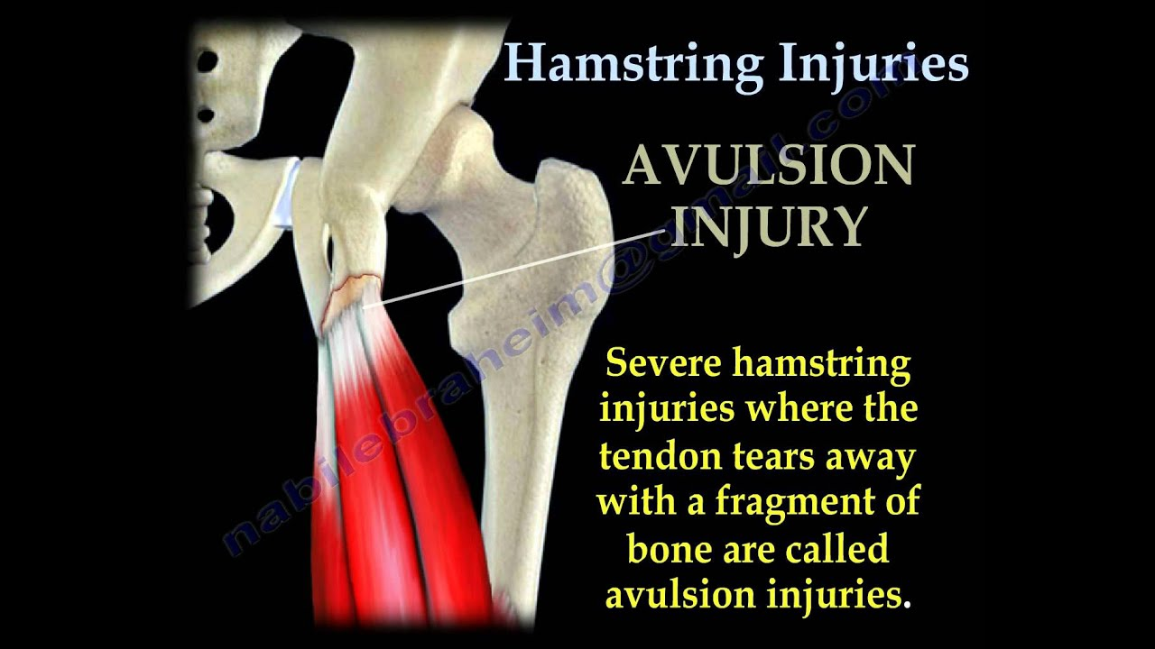 Hamstring Injuries - Everything You Need To Know - Dr. Nabil ...