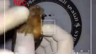 طريقة استخدام الايفرمكتين لطائر الكنار والحسون للوقاية من الفاش (النموز)
