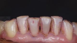 видео Профессиональная чистка зубов Air Flow
