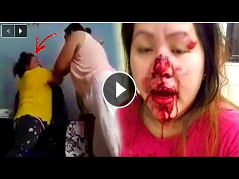 OFW With Expired Contract Was Badly Wounded After Her Employer Forced Her To Stay! shocking