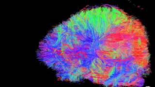 Diffusion Tensor Imaging of Frontal Cortex