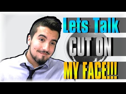 CUT ON MY FACE!!! IS THIS TV SHOW FU^KED? | Lets Talk