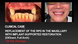 Replace the patient's partial …