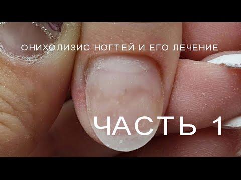 Онихолизис  Как вылечить онихолизис  Что такое онихолизис. Проблемные ногти.