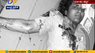 Santhanuthalapadu SI Neelima | Injured in Road Accident | at Ongole