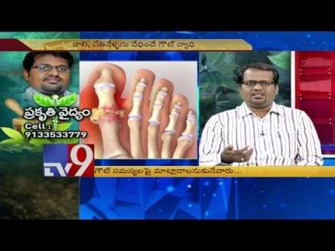 Gouty Arthritis - Naturopathy Treatment - TV9