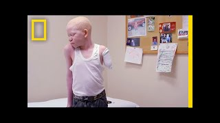 Attacked for Being Albino, Kids Receive Prosthetic Limbs and New Hope | National Geographic