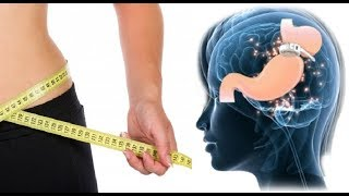 WATCH: Hypnotherapy For Weight Loss Success Stories | The Hypno Band Success Rate