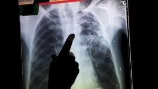 Tuberculosis confirmed in Dalton, Georgia - Whitfield County