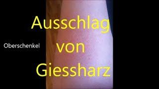 Ausschlag von Giessharz!! Hautausschlag von Resin / Harz