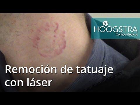 Remoción de tatuaje con láser (16095)