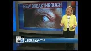 Dropless Cataract Surgery - Erdey Searcy Eye Group Columbus Ohio