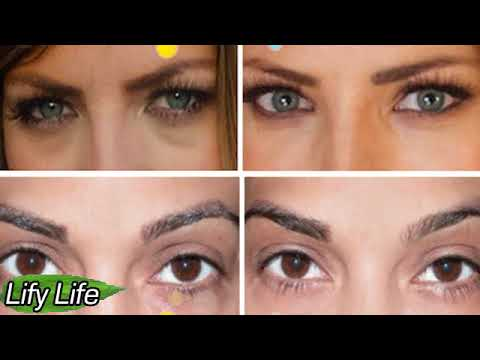 5 true causes of why dark circles appear under the eyes ...