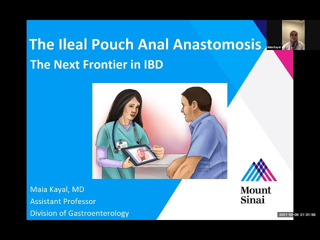 The Ileal Pouch Anal Anastomosis: The Next Frontier in IBD