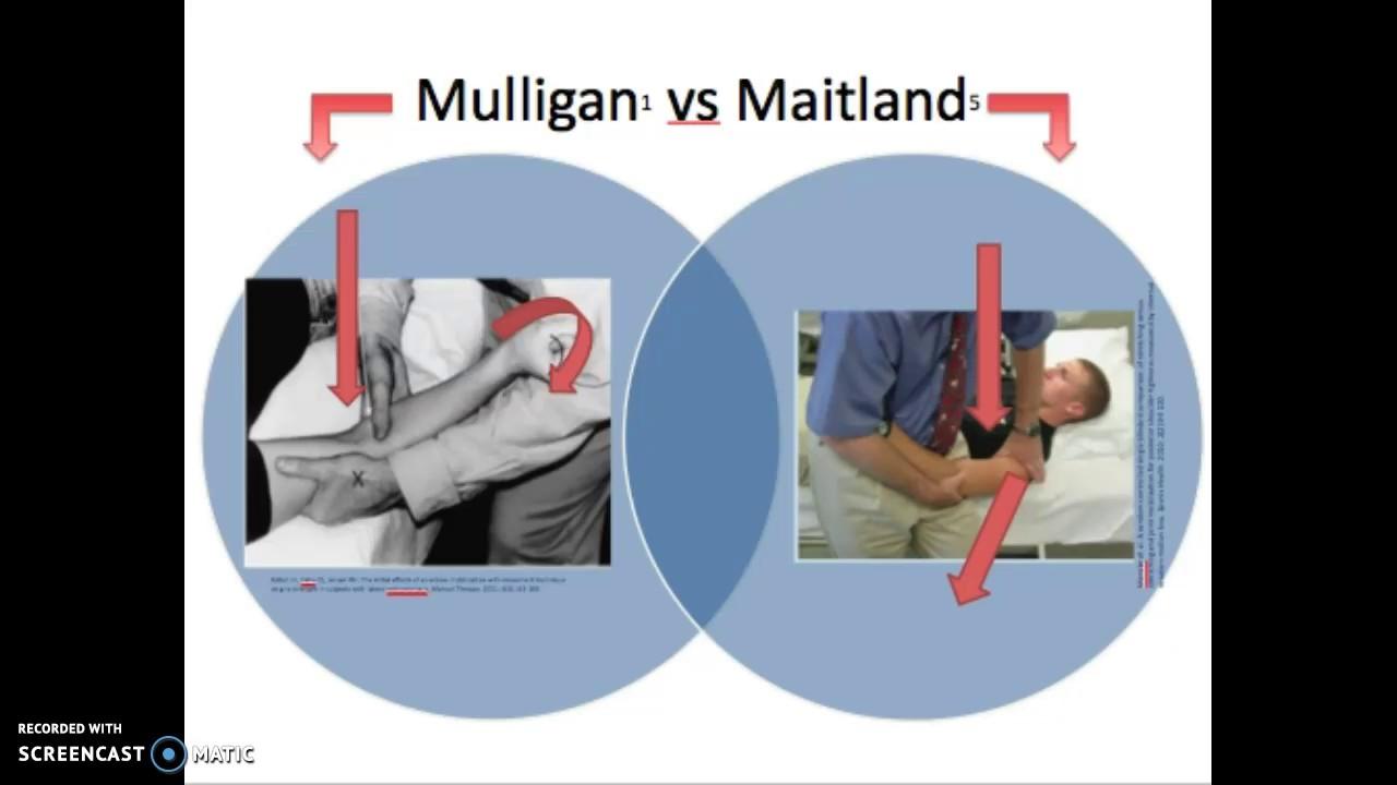 Maitland Vs Mulligan Technique Youtube