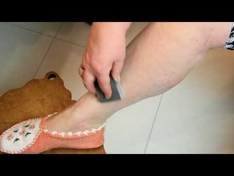 Как удалить волосы на ногах чтобы потом не росли в 60 ЛЕТ