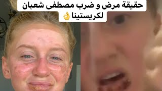 حقيقة مرض و ضرب مصطفى شعبان لكريستينا