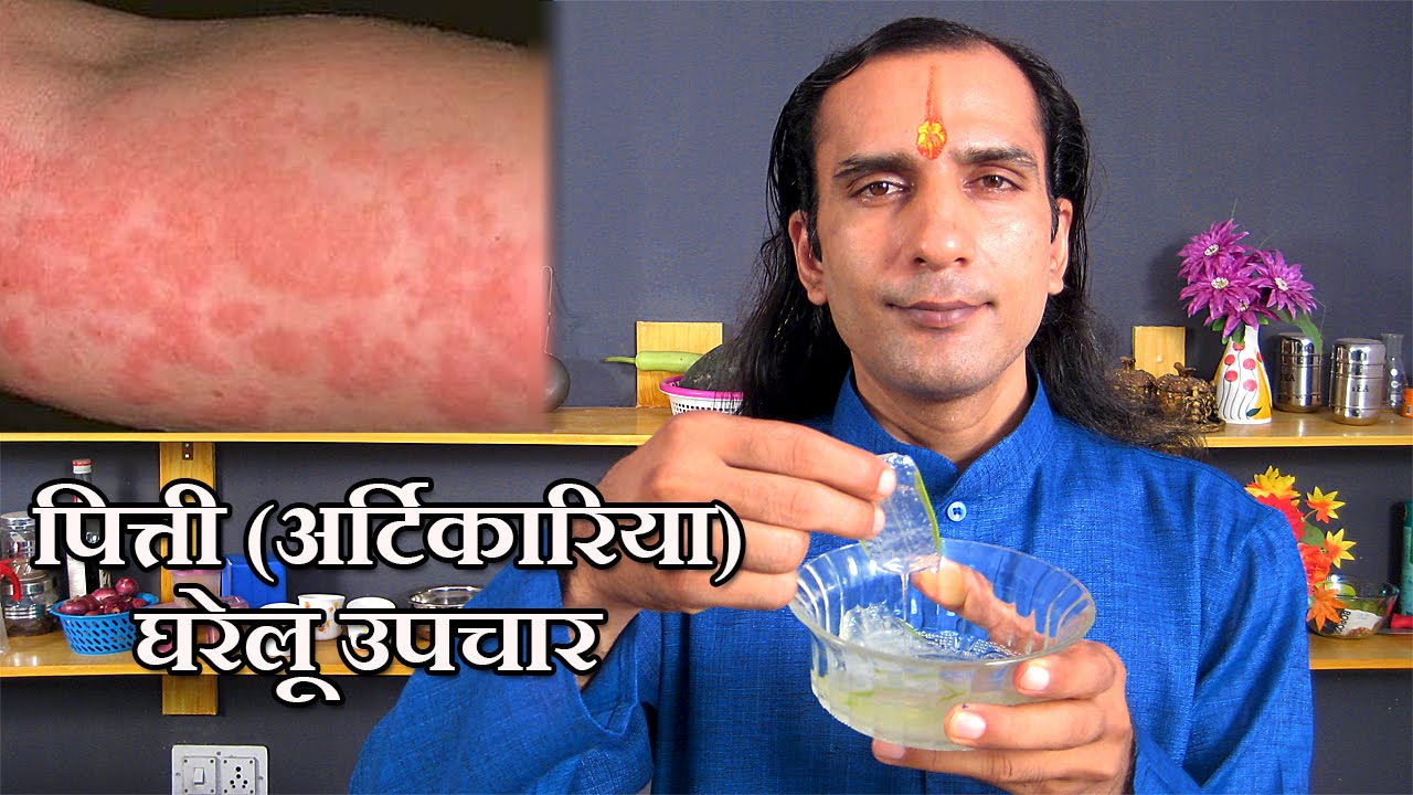 Hives Meaning In Hindi