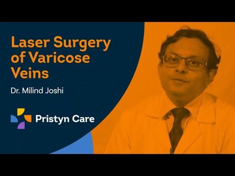 Varicose Veins के लक्षण और इलाज   Treatment Of Varicose Veins   Dr. Milind Joshi